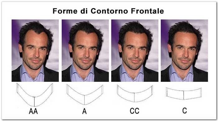 hair replacement front contour shape