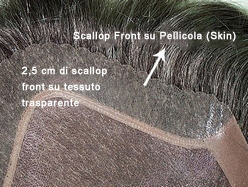 skin hair replacement scallop front