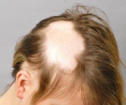 Alopecia areata monolocularis