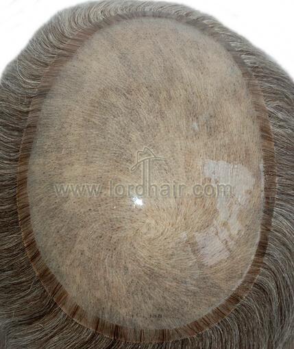 Protesi capelli in silicone
