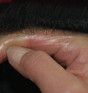 Protesi capelli in skin ultra sottile