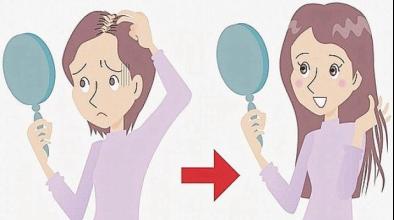 Protesi capelli cos'è