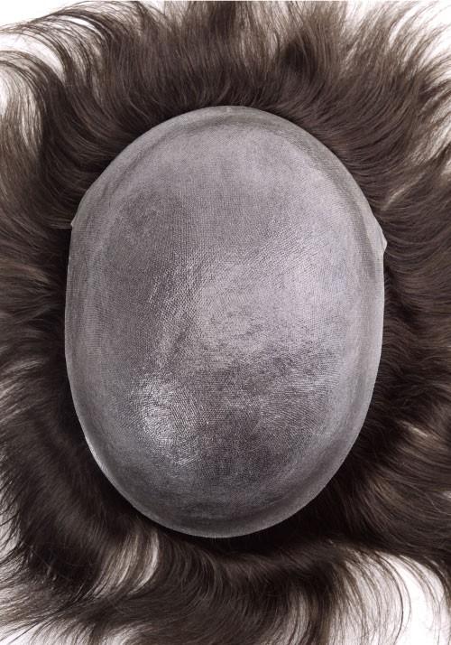 Sistema in skin 1
