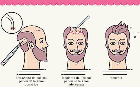 Come funziona un trapianto di capelli