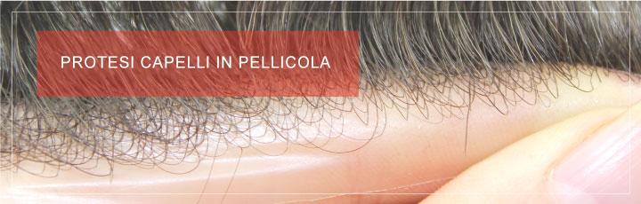 Protesi Capelli in Pellicola