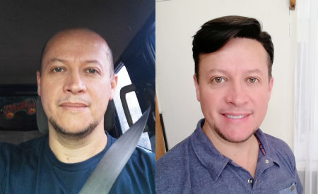 non surgical hair replacement systems before & after - Gary