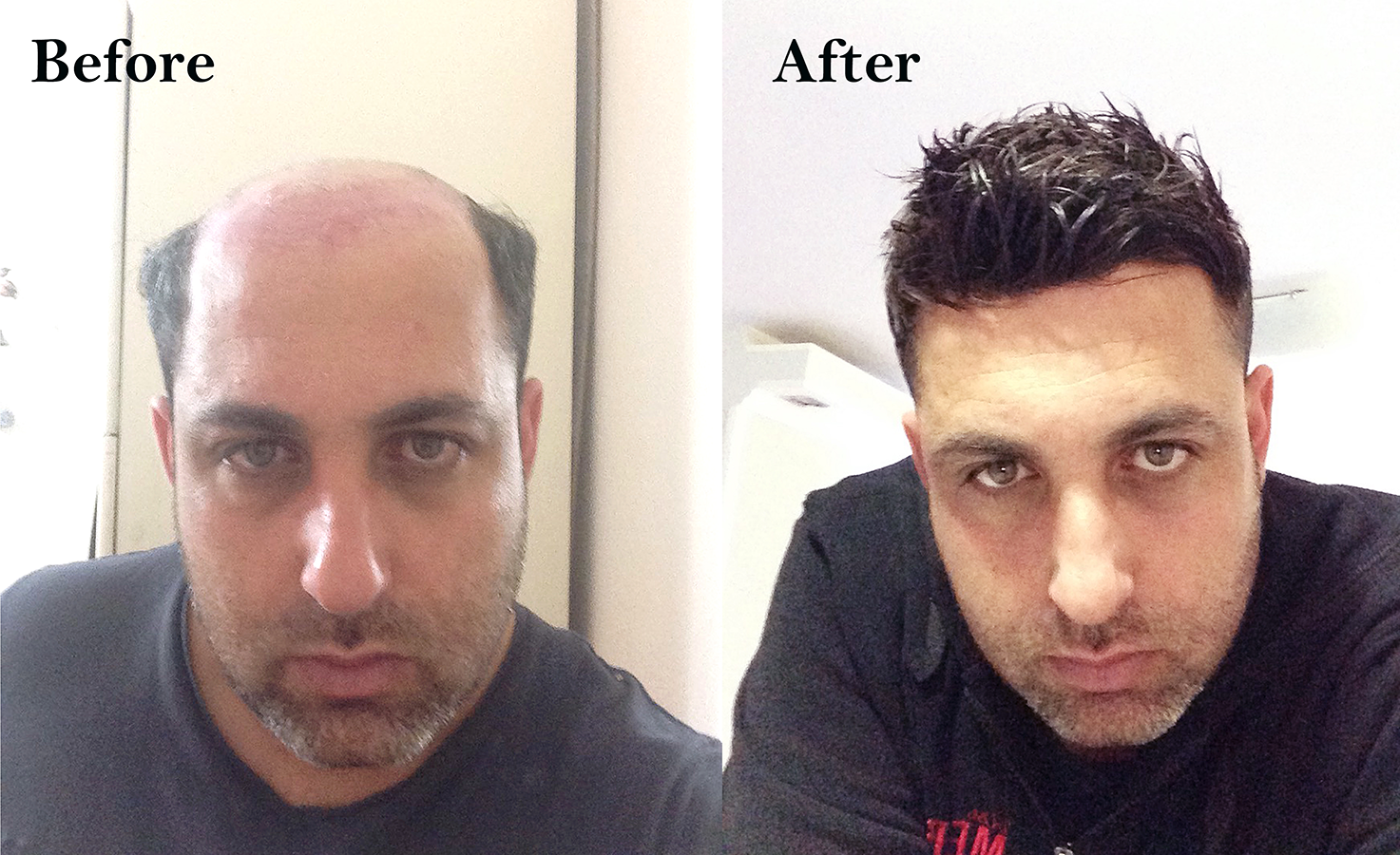 Hair replacement system customer photo