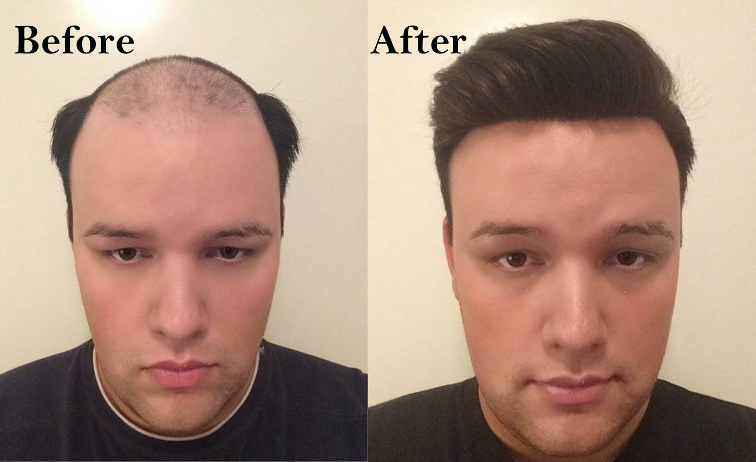 non surgical hair replacement systems before & after