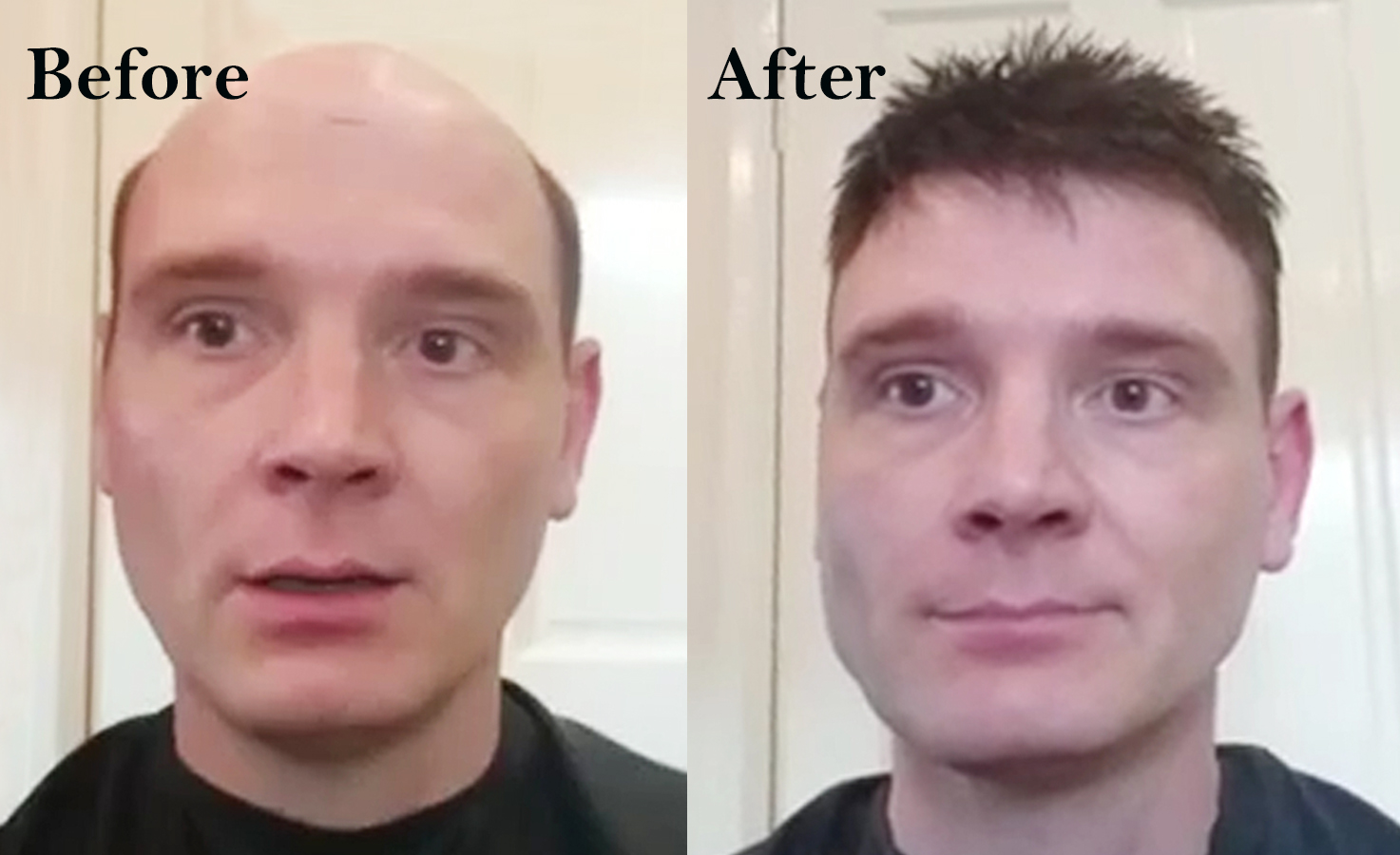 hair replacement systems customer photo