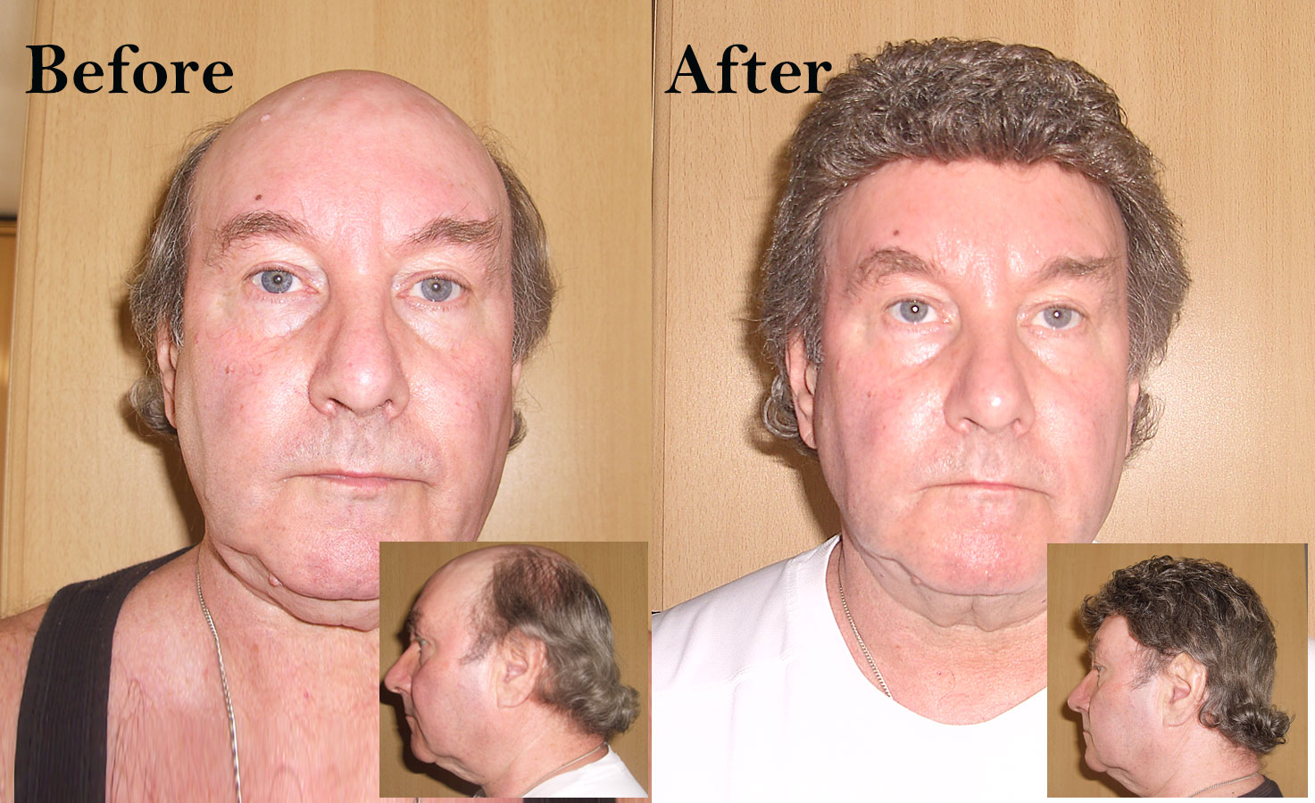 Non Surgical Hair Replacement System Photo