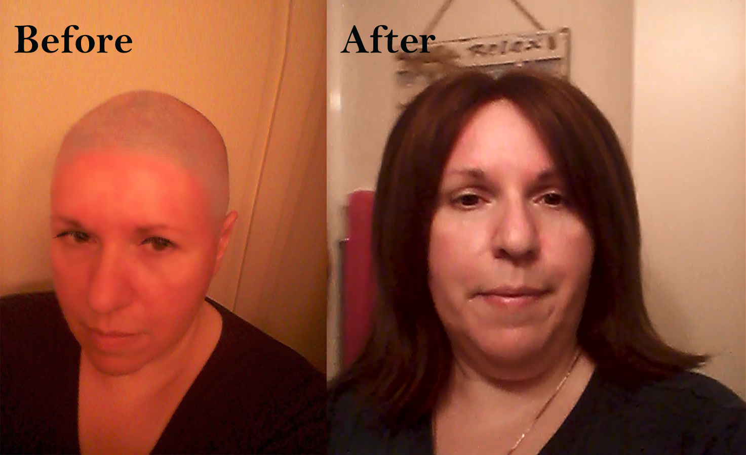 Female hair replacement before & after