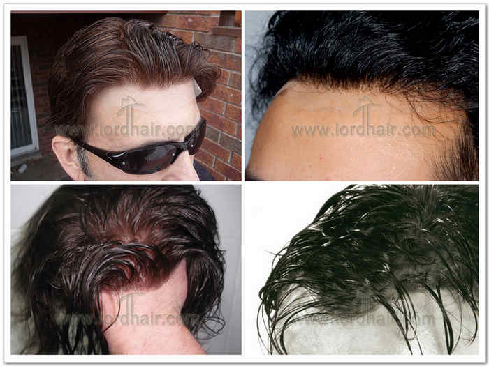 hair replacement non bleach knots
