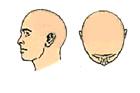 full cap hair replacement