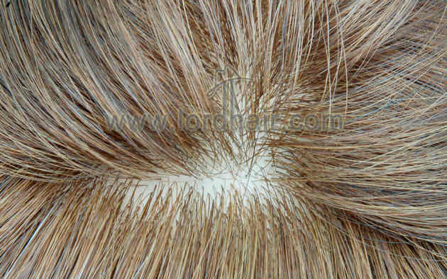 injected silicon hair replacement system